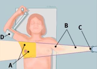 Atlanta breast lift surgery